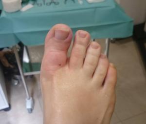 Dedo antes de operar