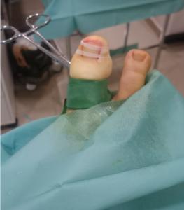Dedo después de operar