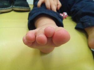 Clinodactilia en niño de 4 años. Deditos montados.