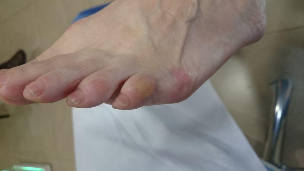 juanete de sastre + dureza dorso 5º dedo