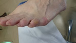 juanete de sastre dureza dorso 5º dedo