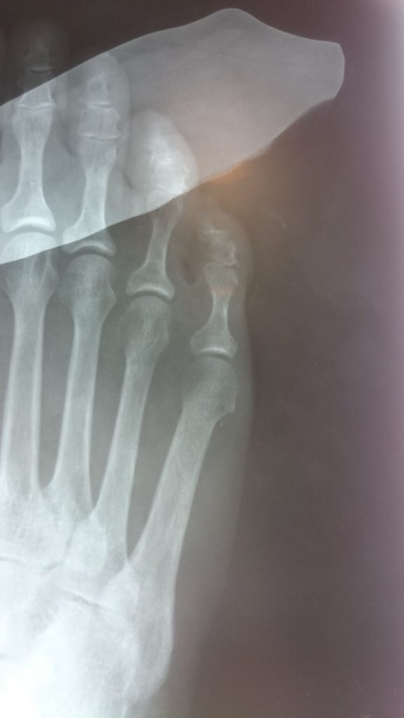 juanete de sastre radiografia preoperatoria