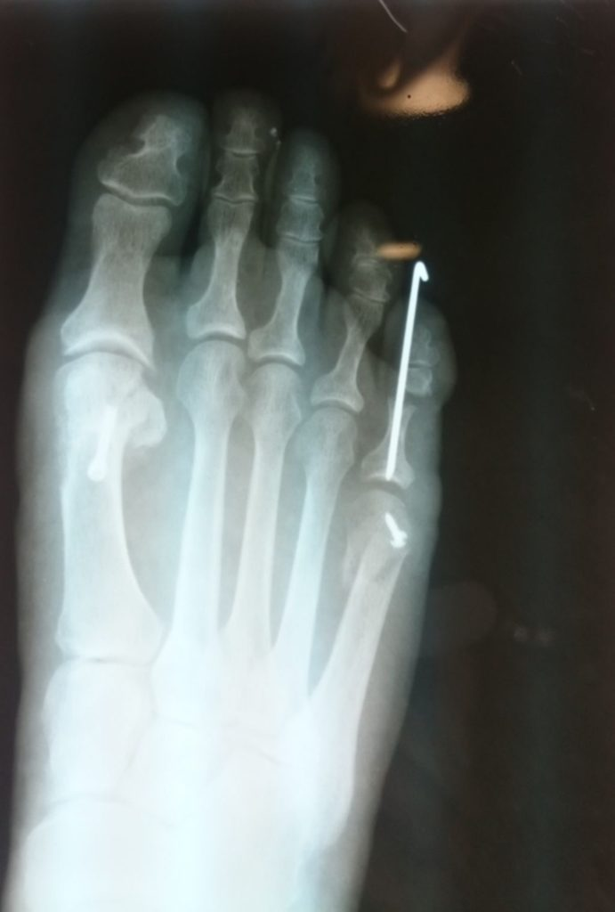 radiografía postoperatoria
