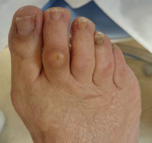 heloma dorsal dedo