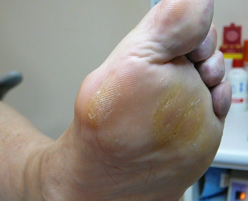 ¿Es dolorosa la visita al podólogo?