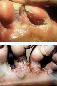hongos en los pies.