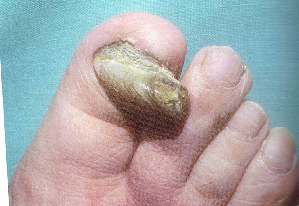 onicogrifosis o uñas engrosadas