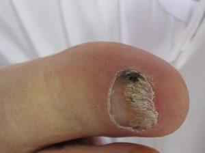 onicomicosis u hongos en las uñas