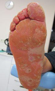 psoriasis plantar