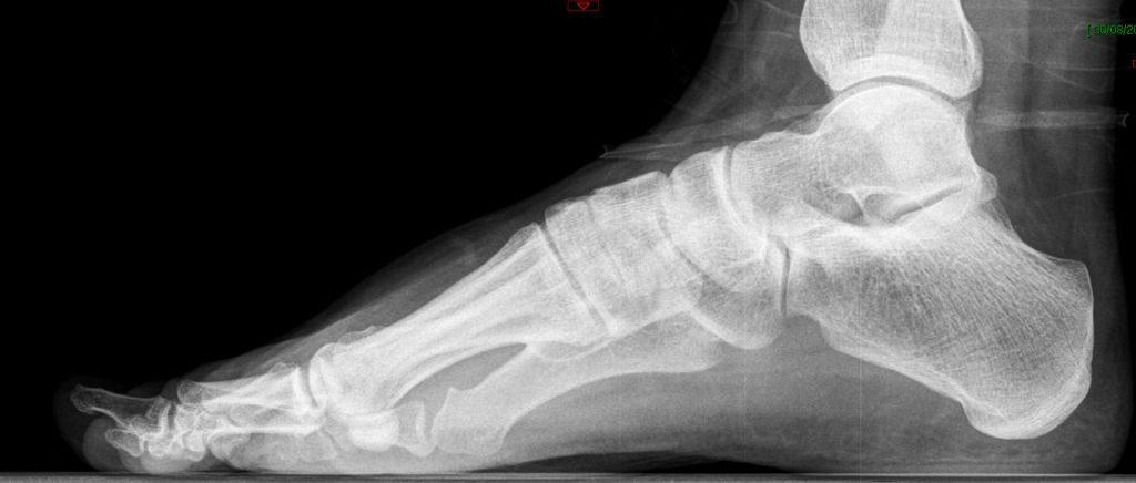 RX lateral preoperatoria