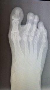 radiografía del pie cuando llega a mi consulta