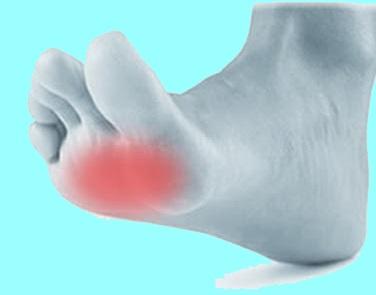 Tratamiento quirúrgico del dolor plantar