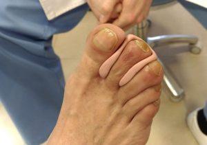 silicona para 2º dedo en maza visión dorsal
