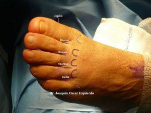 Tipos de Neuromas según localización pie