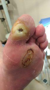 úlcera neuropática tras 12 días de tratamiento