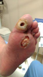 úlcera neuropática tras desbridamiento