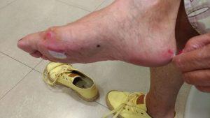 Lesión en juanete y zona interna talón