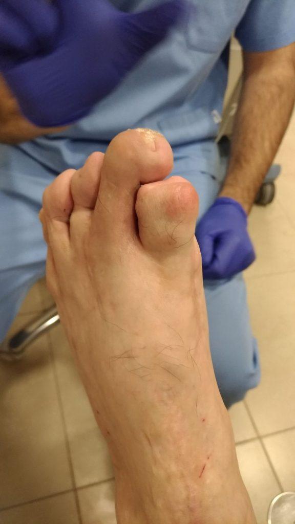 yatrogenia quirúrgica con amputación