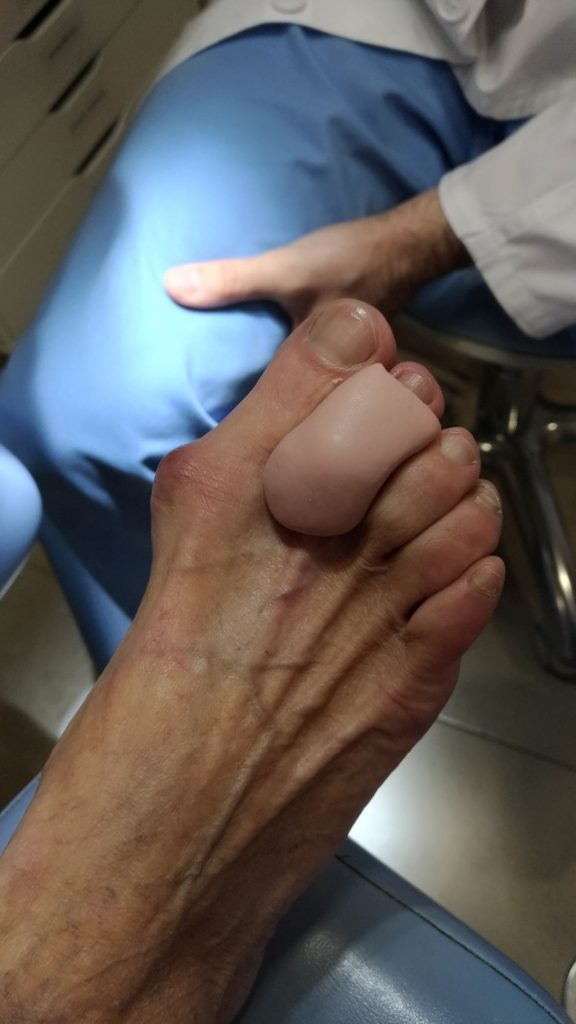 2º dedo en garra con silicona realizada