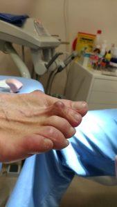 2º dedo en garra severo. visión lateral