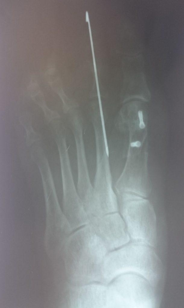 radiografía postoperatoria cirugia 2016