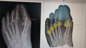 Planteamiento quirúrgico. Los círculos amarillos es la posición donde debemos llevarnos las cabezas metatarsales.