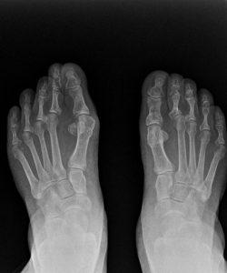 Radiografía juanetes dorsoplantar 1.