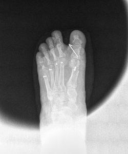 Radiografía postoperatoria a los 7 días. Véase la corrección de las cabezas metatarsales.