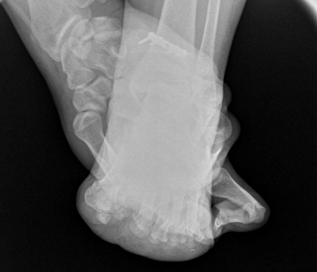 Radiografia juanetes Walter Muller 3