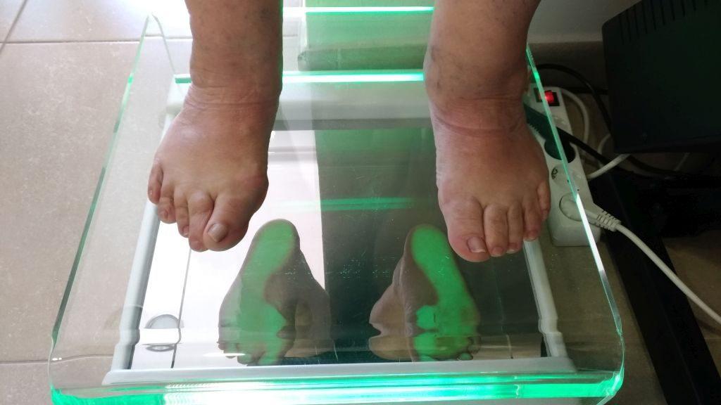 pies en carga. pie izquierdo intervenido por MIS. Pie derecho sin intervenir