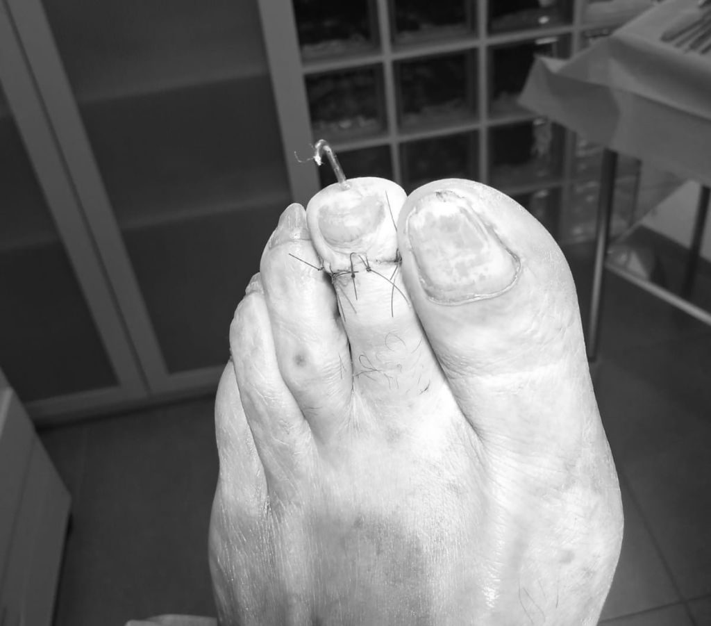 Cirugía dedo en maza. Artrodesis