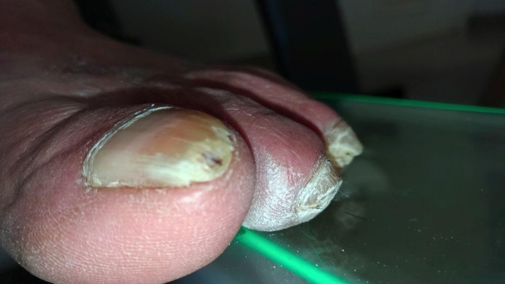 Dedo en maza. Alteración de la uña