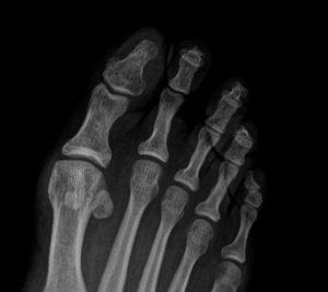 Radiografia dorsoplantar dedo en maza