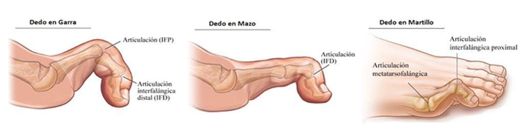 Tipos de dedo en garra