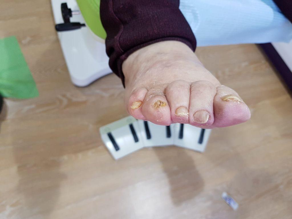 4º y 5º dedos en garra. Postoperatorio frontal