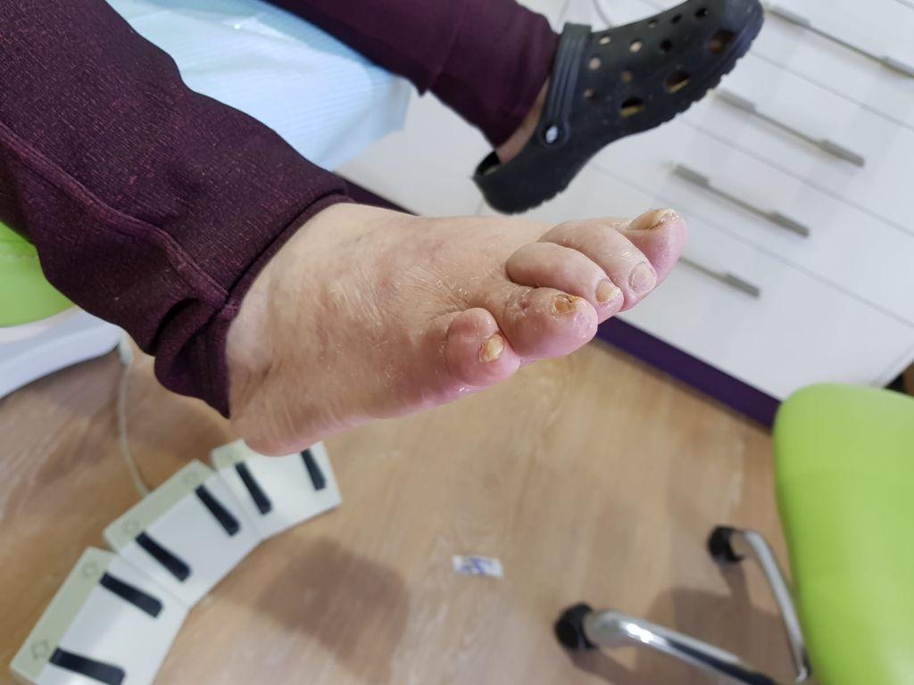 4º y 5º dedos en garra. Postoperatorio lateral - Podologo..