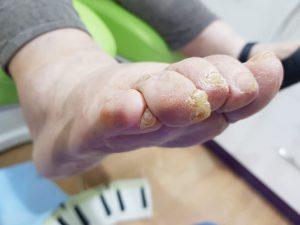 4º y 5º dedos en garra. Preoperatorio lateral