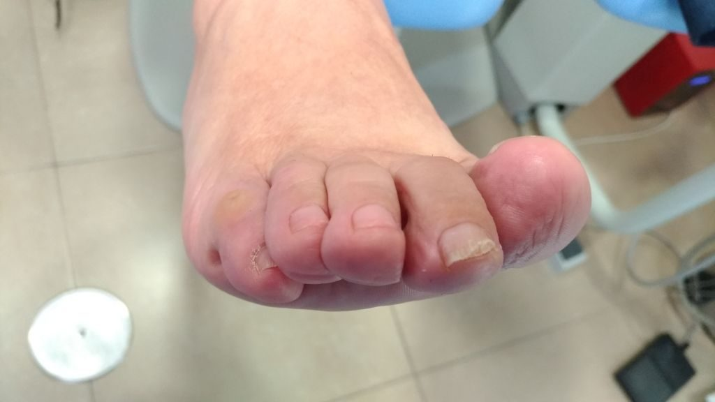 5º dedo en garra (callo). Preoperatorio frontal