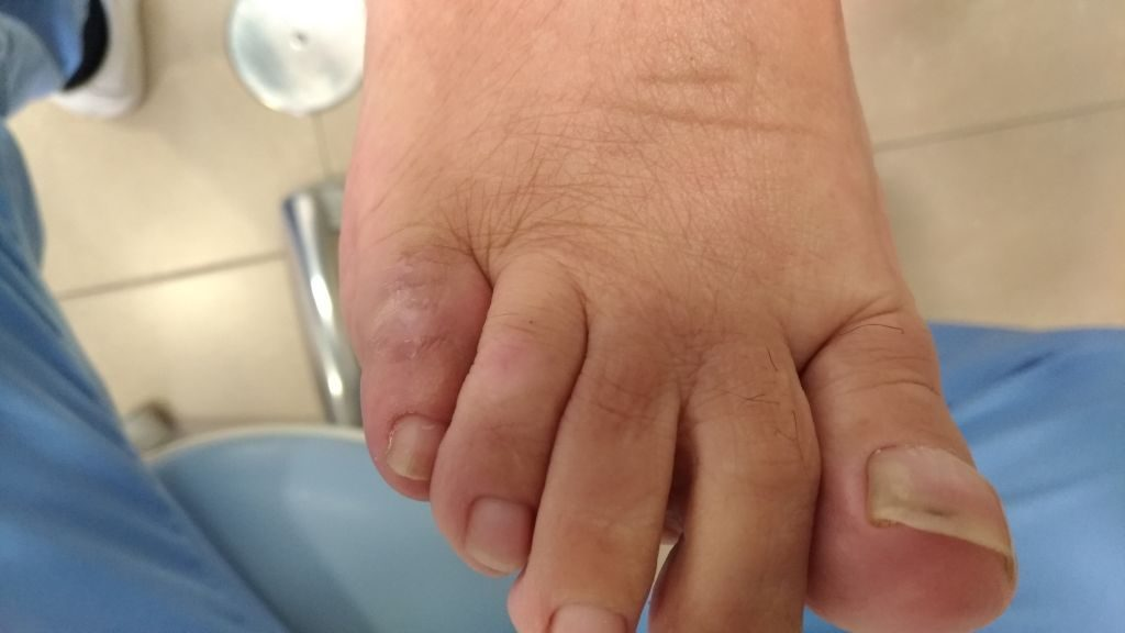 5º dedo en garra. Postquirúrgico dorsal