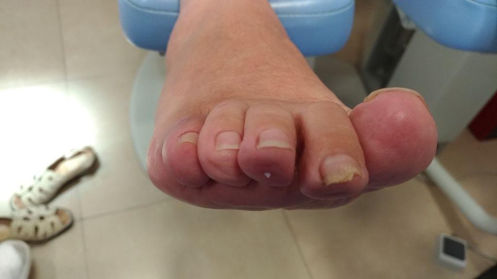 5º dedo en garra. Postquirúrgico frontal