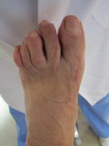 Cirugía juanetes y dedos en garra. Imagen postquirúrgica pie izquierdo