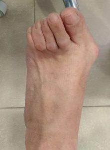 Cirugía juanetes y dedos en garra. Imagen prequirúrgica pie izquierdo