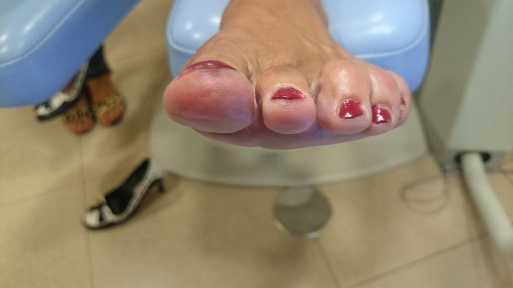 Juanete y 2º dedo doloroso. Postoperaotorio frontal