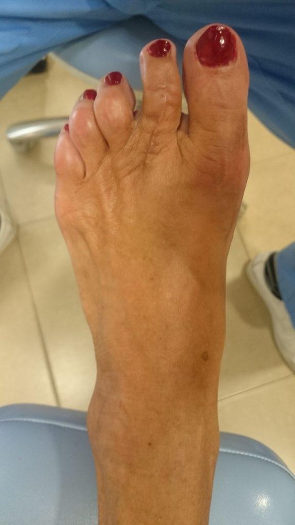 Juanete y 2º dedo doloroso. Postoperatorio dorsal