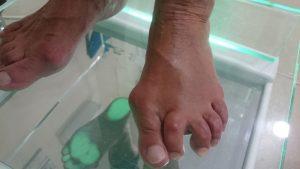 Juanete y 2º dedo doloroso. Preoperatorio dorsal