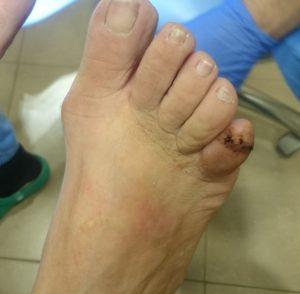 Retirada de la sutura a los 14 días