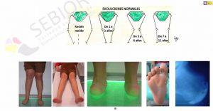 evolución normal de la rodilla