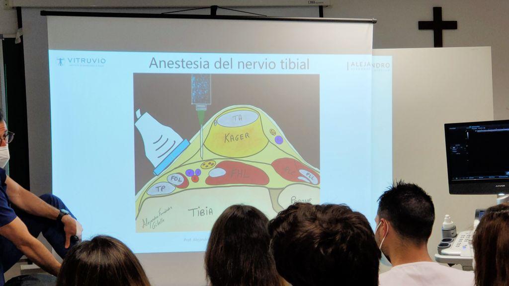 anestesia nervio tibial